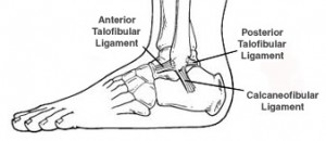 ankle-sprain-doctor-naperville