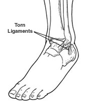 ankle-sprain-naperville