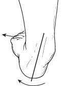 flatfoot1
